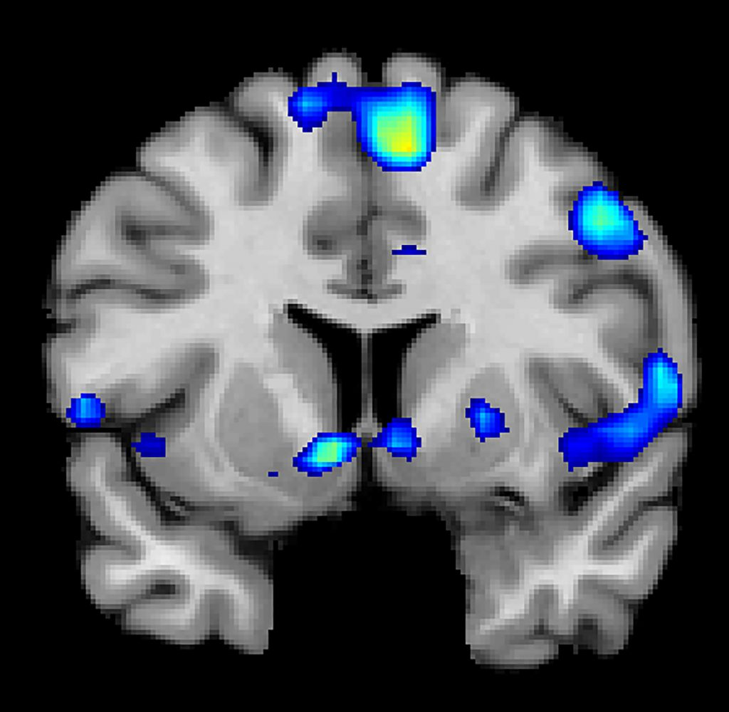 An fMRI scan shows regions of the brain that become active when devoutly religious study participants have a spiritual experience, including a reward center in the brain, the nucleus accumbens.